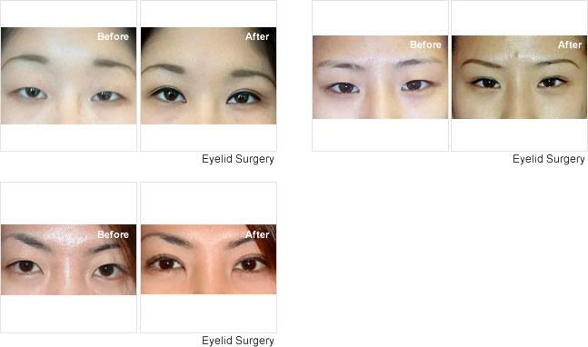 Blepharoplasty Singapore